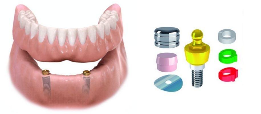agenesia bambini dente fuso para