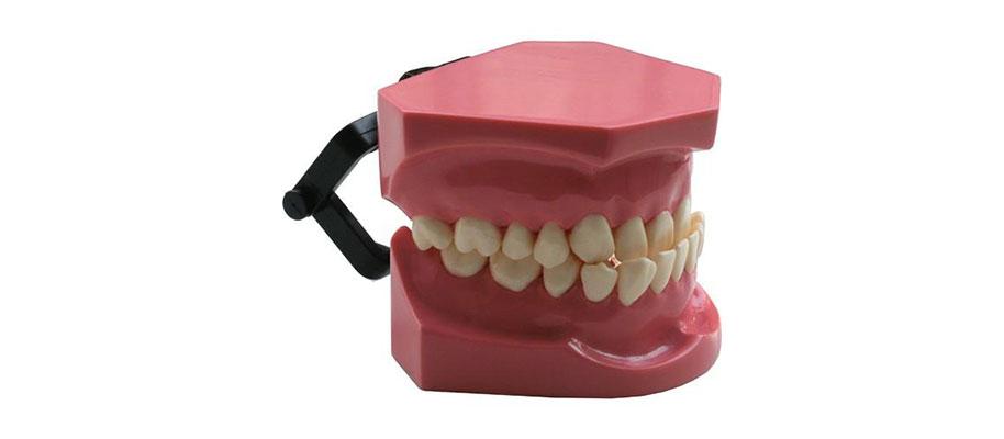 agenesia dentale nei bambini dentalscanio