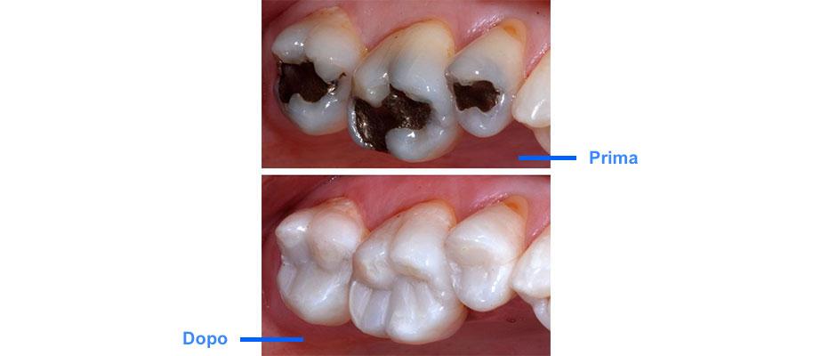 agenesia bambini dente fuso en